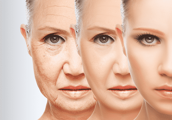 A woman's before and after Botox procedure images.