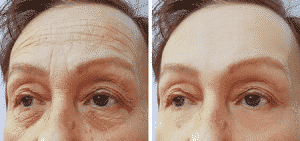 Before and after pictures of a Botox procedure.