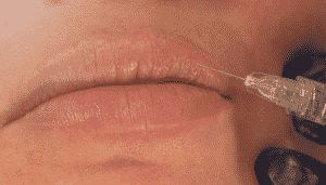 A patient's lips being injected with filler.